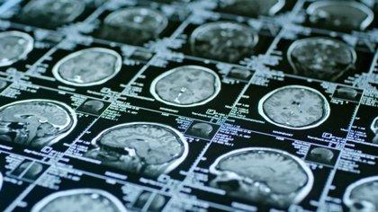 La resonancia magnética predice la eficacia de una terapia con células madre para la lesión cerebral