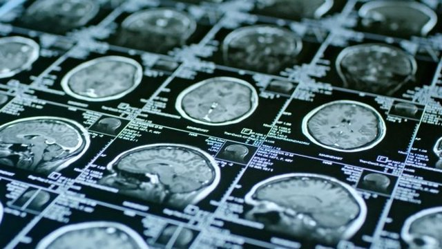 La resonancia magnética predice la eficacia de una terapia con células madre par
