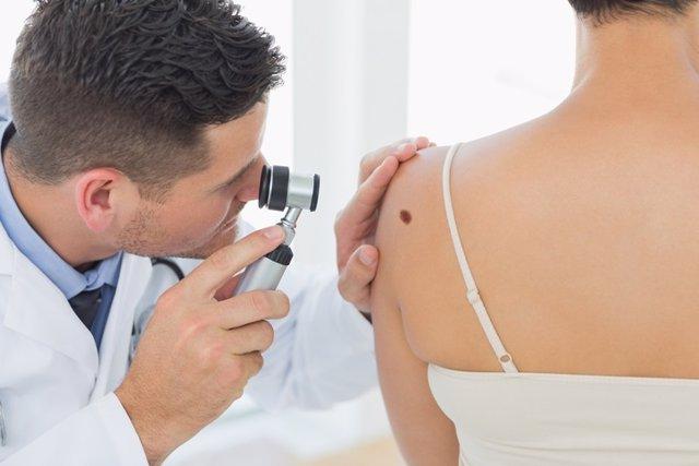 Melanoma, dermatólogo