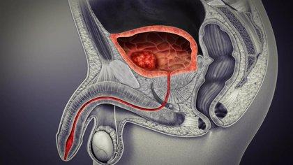 Nuevo combinación farmacológica contra el cáncer de vejiga metastásico