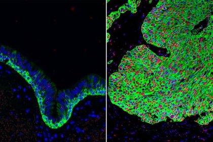 Oncólogos alertan de que el Covid-19 podría lastrar hasta un 33% la supervivencia en algunos cánceres