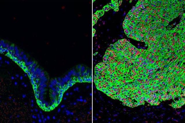 Tejido normal de las vías respiratorias (izquierda) y tejido canceroso del pulmón (derecha), con una sobreabundancia de células madre basales (verde). La forma activada de beta-catenina (rojo) en el cáncer de pulmón puede ser atacada por el compuesto