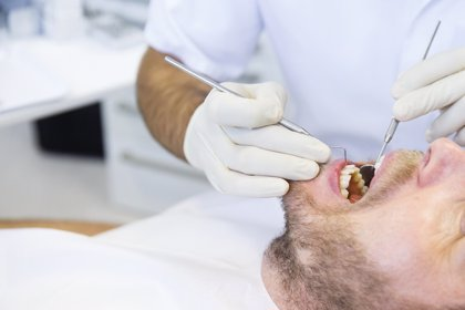 Las bacterias que causan caries forman un 'ejército' defensivo de microbios en los dientes