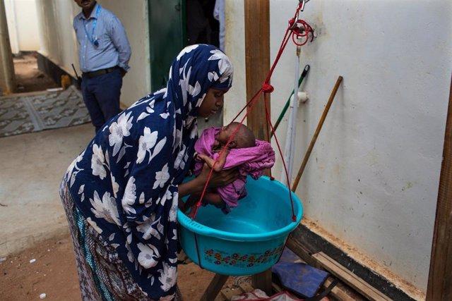 Un niño con desnutrición en Somalia