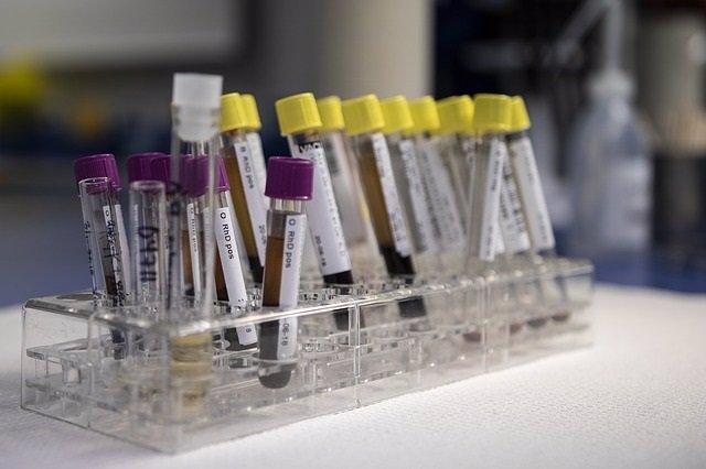 Un análisis de sangre puede ayudar a predecir qué paciente de  esclerosis múltip