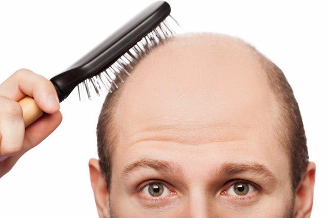 Calvo, calvicie, alopecia androgenética, más sensible a padecer COVID-19