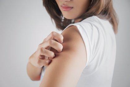 Por qué nos pica la piel: 3 trucos para aliviar el picor