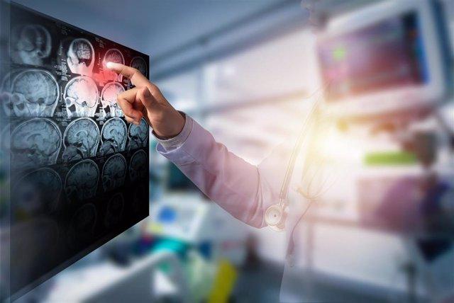 Doctor tocando la pantalla de imagen de cerebro de TC en sala de trabajo, ictus.