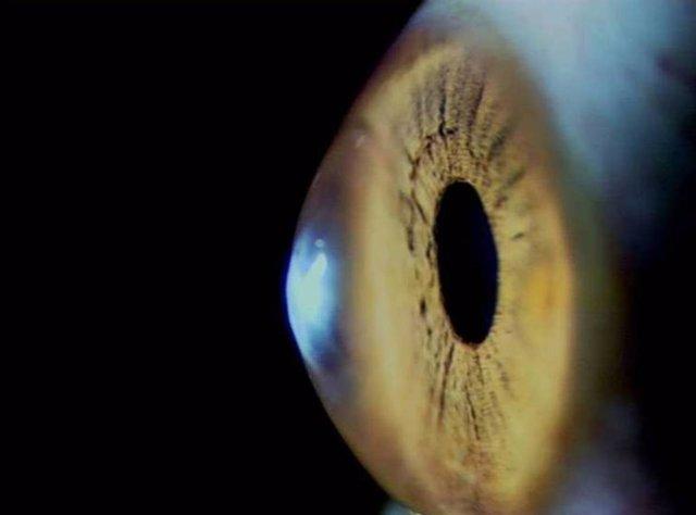 La córnea, la lente más externa del ojo, se debilita con el paso del tiempo./