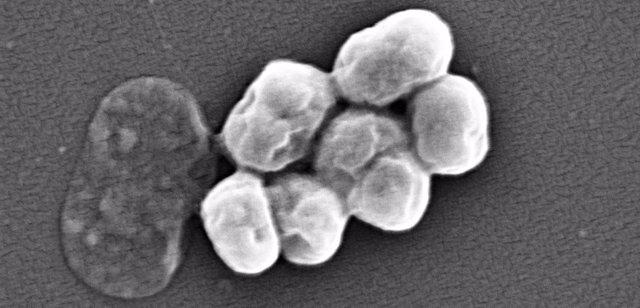 Imagen de A. Baumannii, visualizada por microscopía electrónica.