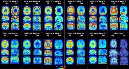 Nueva herramienta de imagen ayuda a los investigadores a ver la extensión del daño temprano de Alzheimer