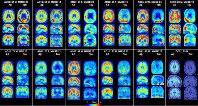 PET del cerebro que muestra placas amiloides y proteínas tau en Alzheimer