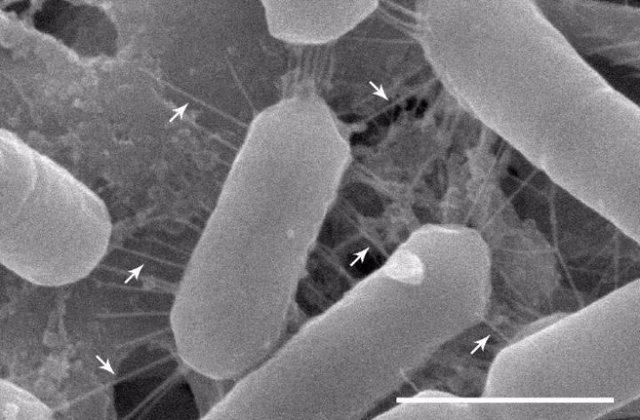 Imagen de microscopía electrónica de barrido de la cepa Lacticaseibacillus casei AMBR2 de la nariz muestra fimbrias largas con forma de espiga que permiten que las bacterias se adhieran a la superficie celular.