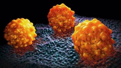 Investigadores españoles descubren una proteína modificadora esencial para las células madre del cáncer pancreáticas