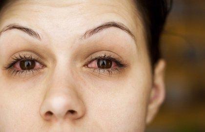 La contaminación atmosférica también puede afectar a los ojos