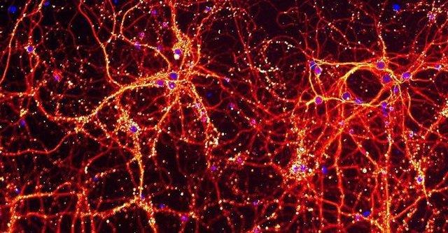 Esta imagen muestra las neuronas y sus conexiones entre sí en rojo y amarillo, y el ADN de la célula en azul. Estas neuronas se usaron para estudiar el impacto de la infección por toxoplasma en las células.