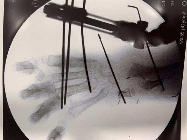 Radiografía de la malformación en la mano