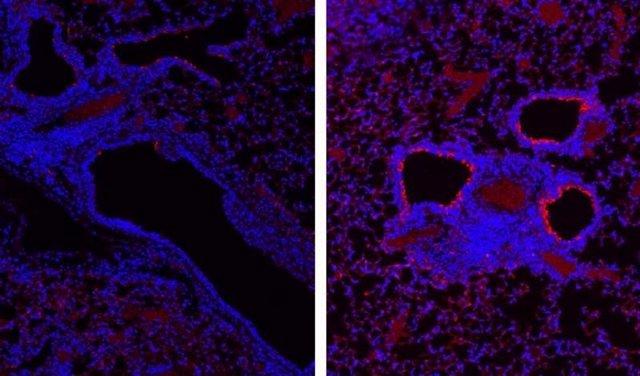 Secciones de tejido de los pulmones de los ratones, después de la infección de la gripe. La imagen de la izquierda es el control y la de la derecha es de ratones sin receptores para el interferón lambda.