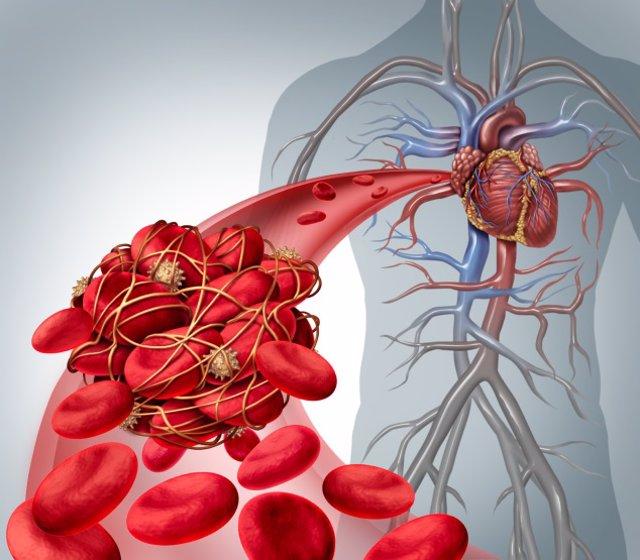 Los hipertensos, diabéticos u obesos con la Covid-19 tienen un mayor riesgo de p