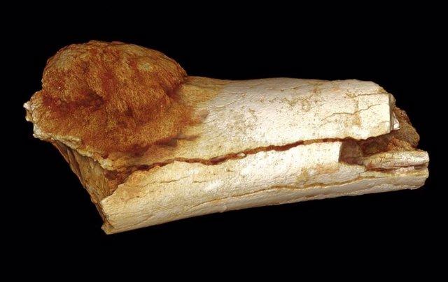 Hueso con osteosarcoma
