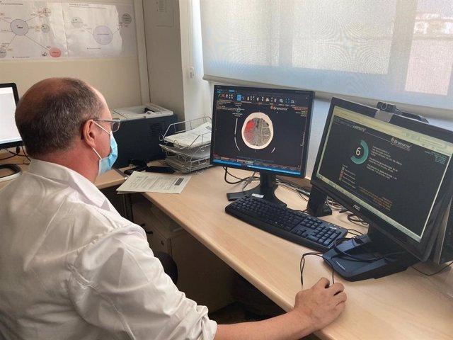 El Hospital Macarena incorpora un software de neuroimagen para mejorar atención al ictus que ofrece el CATI