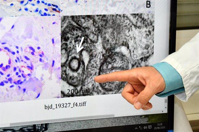 """Los investigadores han conseguido """"fotografiar"""" al virus en la piel, gracias a las biopsias realizadas en lesiones de tipo sabañones en niños (muchos de ellos habían dado negativo en la PCR) ."""