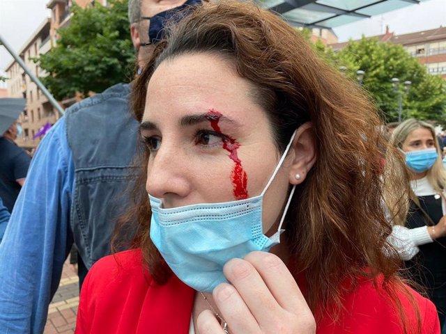 La diputada de Vox Rocío de Meer sangrando de una ceja tras recibir una pedrada en Sestao (Bizkaia)