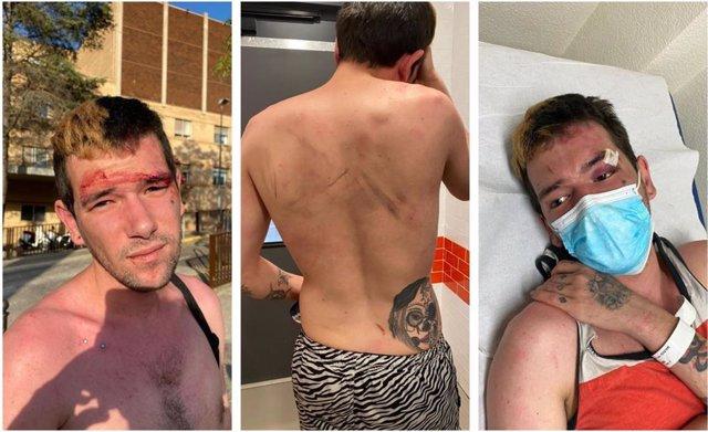 Un joven denuncia una agresión homófoba por parte del Hospital General de Castelló