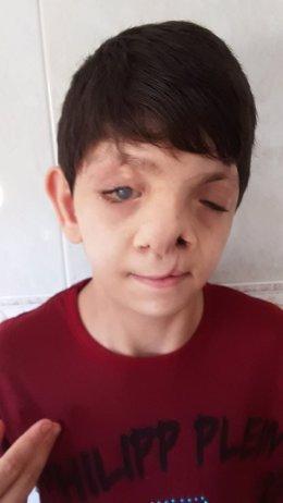 La Fundación Adelias busca ayuda para poder operar a un niño con malformaciones graves en el rostro