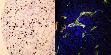Investigadores españoles hallan un nuevo biomarcador que predice la eficacia de la inmunoterapia en cáncer