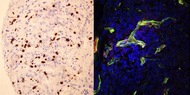 Izquierda: Linfocitos citotóxicos (en marrón) infiltrando un tumor colorectal con altos niveles de SOD3. Derecha: Células tumorales donde se observa la proteína de la membrana basal (en verde) que permite que los linfocitos accedan al tumor