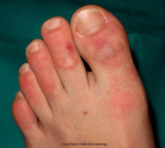 Imagen de las lesiones estudiadas