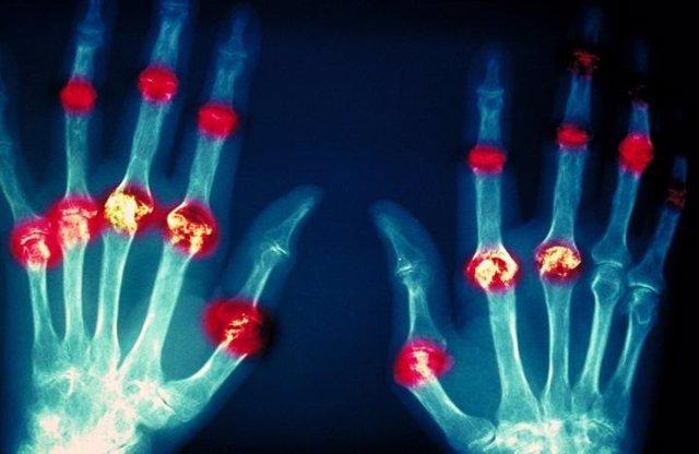 Daño articular de la artritis reumatoide.