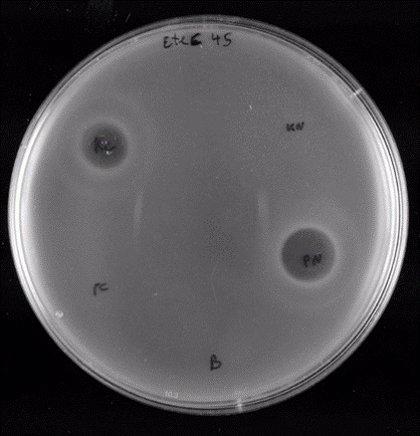 La UA diseña un antibacteriano contra la bacteria responsable de la diarrea del viajero y la insuficiencia renal