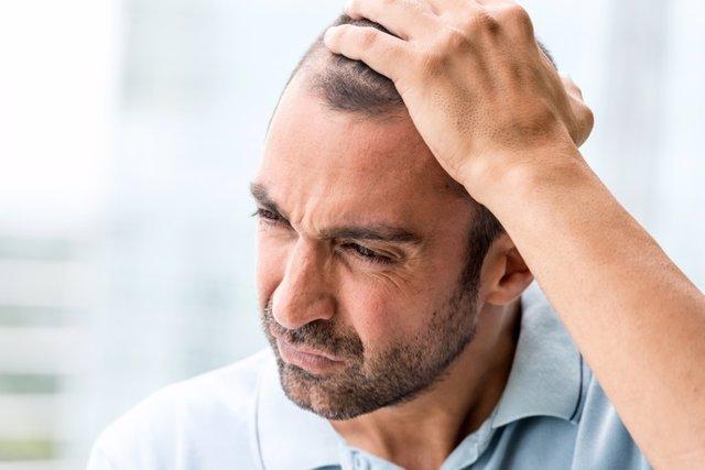 Hombre maduro concentrado, alopecia, preocupado