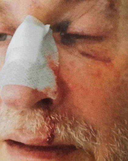 """Un funcionario de la prisión de Asturias sufre una """"brutal agresión"""" por parte de un recluso"""