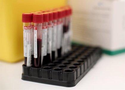 Madrid notifica un nuevo brote de coronavirus con 5 casos positivos y 61 contactos en varias CCAA
