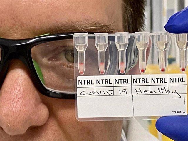 Muestras de sangre COVID-19 positivas y negativas.