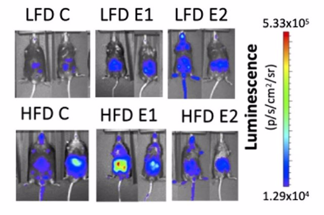 Ratones hembra obesos, alimentados con una dieta alta en grasas, muestran una activación de la vía NF-?B en el abdomen y en la glándula mamaria, siendo esta activación parcialmente abolida al suministrar estradiol, pero incrementada por el tratamiento con