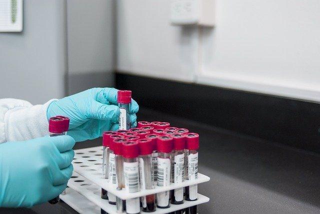 Laboratorio, muestras de sangre.