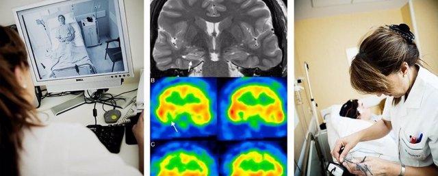 Estudio llevado a cabo por tres neurólogos españoles sobre el riesgo de retirar la medicación en epilepsia.