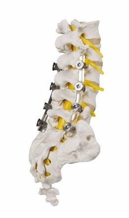 Implante 'SpineShape'