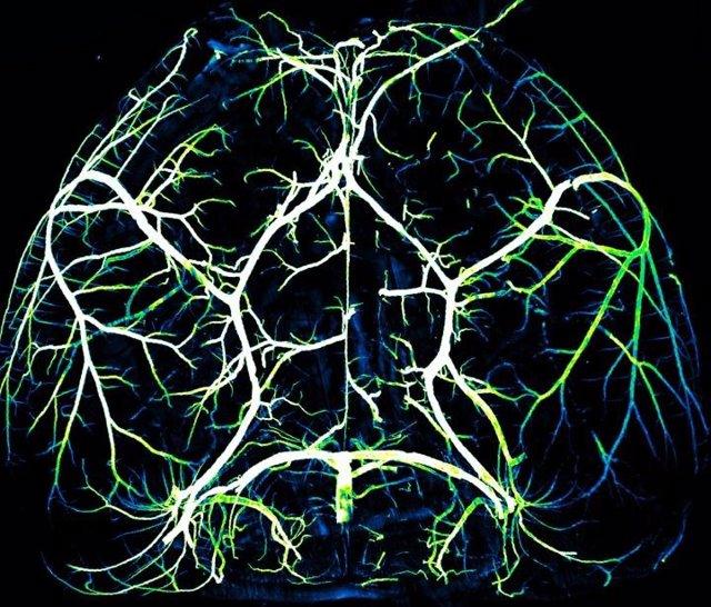Arterias del cerebro.