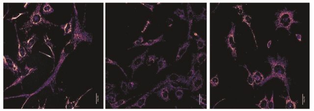 Izquierda; células control que tienen únicamente ADN mitocondrial C57. Centro, células heteroplásmicas (tienen ADN mitocondrial de C57 y NZB coexistiendo en el citoplasma). Dcha; células heteroplásmicas tratadas con un fármaco (activador de PERK)