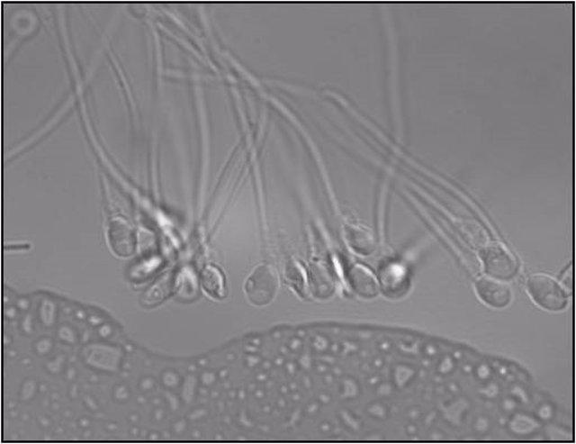 La cola de los espermatozoides se mueve muy rápidamente en 3D, no de lado a lado