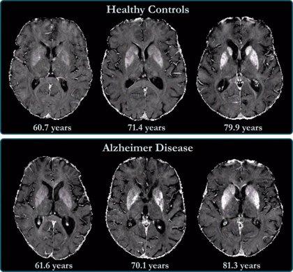 La proximidad a la edad parental de inicio del Alzheimer indica mayor riesgo de enfermedad en mujeres, según un estudio