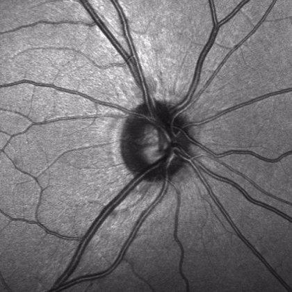Unas células madre en el nervio óptico podrían preservar la visión