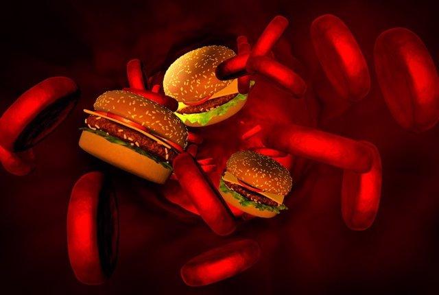 Colesterol, arterias con hamburguesas.