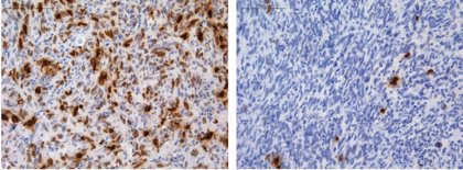 Explican cómo algunos gliomas adquieren resistencia a la quimioterapia