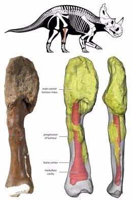 La masa tumoral principal está en la parte superior del hueso y se puede ver en la reconstrucción 3D en amarillo